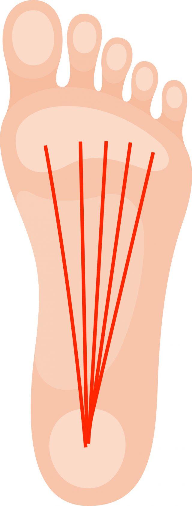 足底筋膜炎について気をつけていること