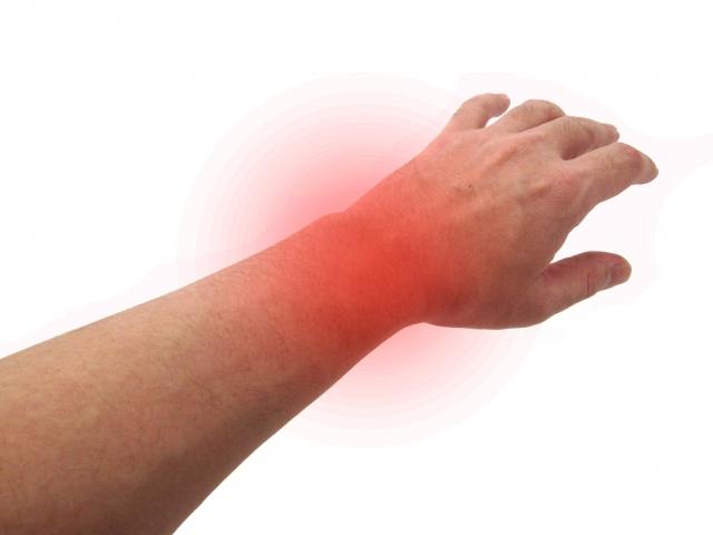 腕の痛み 写真