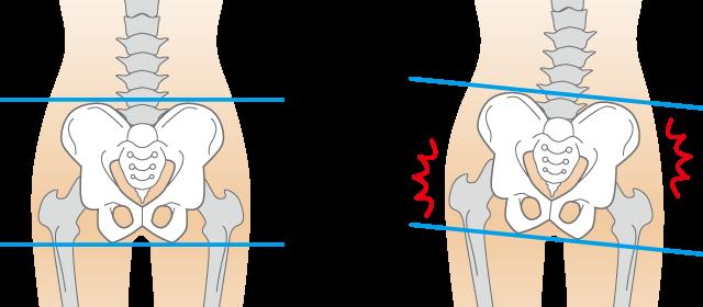 骨盤の歪みは内臓を圧迫し、便秘の原因になります。