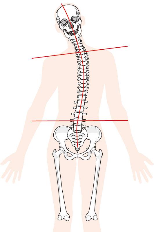 肋間神経痛の原因になるものは?